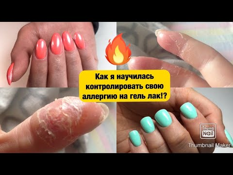 Аллергия на гель-лак! Научилась жить с аллергией на шеллак. Почему возникает аллергия на гель лак?!