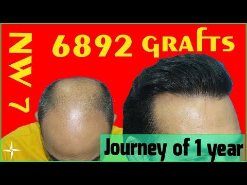 Hair Transplantation Result in 12 Months, Grade 7/6892 Grafts, @Eugenix by Drs Sethi & Bansal