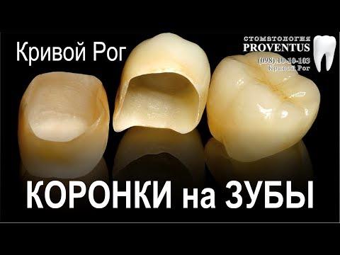 Как поставить коронку на зуб