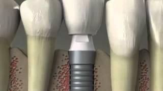 River Road Dental:  Implants