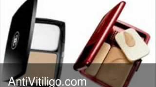 Revlon Vitiligo Makeup Thumbnail