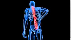 The Effects Of Long Term Neck & Back Pain By Dr. Daniel Farkas, Troy Michigan Chiropractor