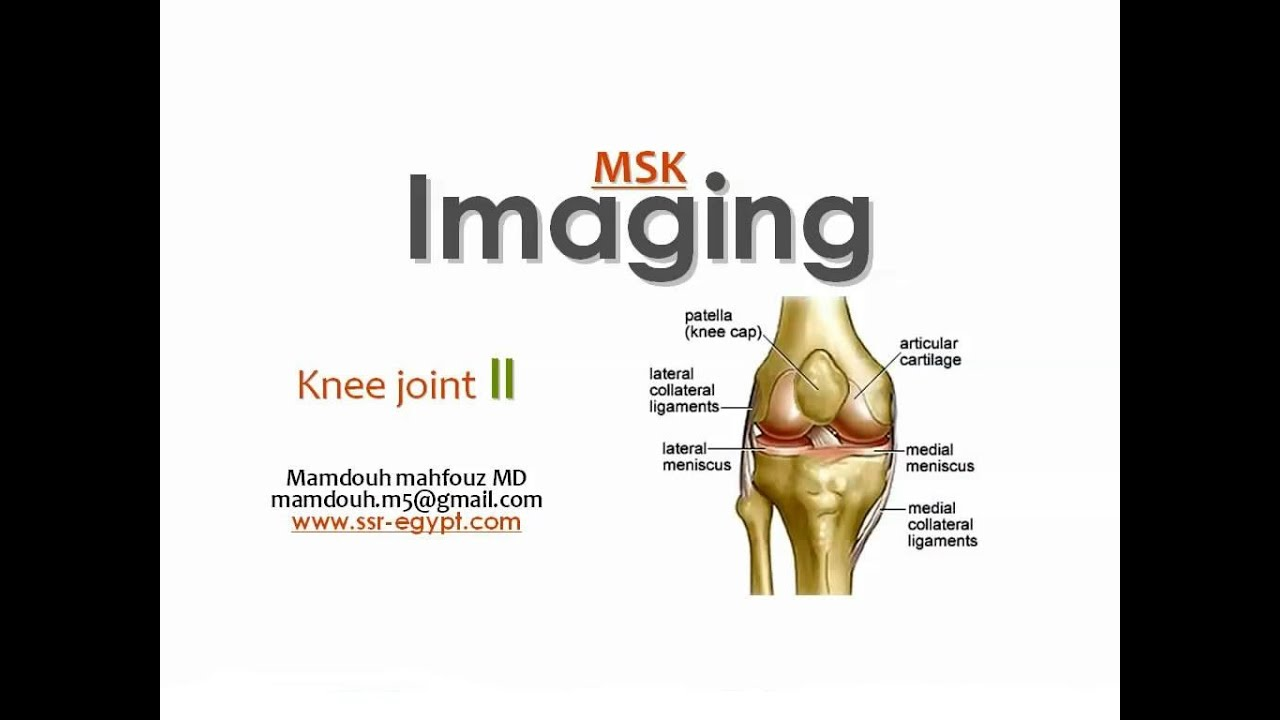 Imaging of Knee part 2 - Dr Mamdouh Mahfouz - YouTube