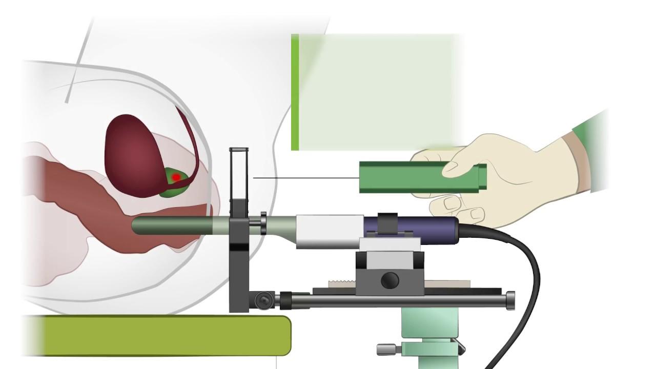 UKMP Fusionsbiopsie der Prostata - YouTube