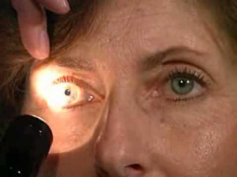 Cranial Nerves 2 & 3  Pupillary Light Reflex