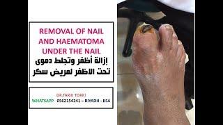 REMOVAL OF NAIL AND HAEMATOMA UNDER THE NAIL | إزالة أظفر وتجلط دموى تحت الاظفر لمريض سكر