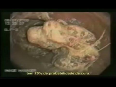 A limpeza do intestino e como o Aloe Vera age dentro do organismo.