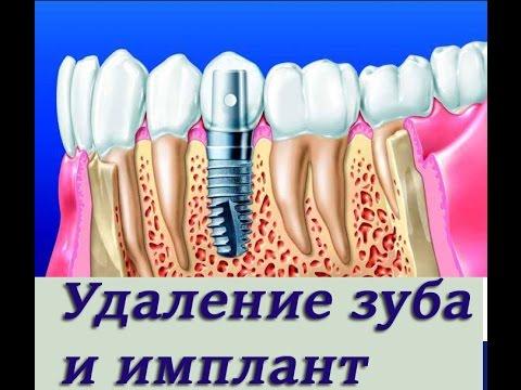 Установка импланта в лунку после удаления зуба. Имплантология, ортопедическая стоматология.