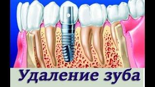 Установка импланта в лунку после удаления зуба. Имплантология, ортопедическая стоматология.(В этом видео мы вам расскажем как установить имплант после удаления зуба. А так же поговорим об обследовани..., 2015-05-13T20:58:05.000Z)