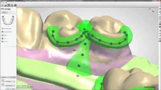 Removable Partial Dentures Design with 3Shape - Maptec KSA