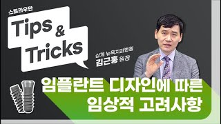 Tips & Tricks 7 - 임플란트 외형디…