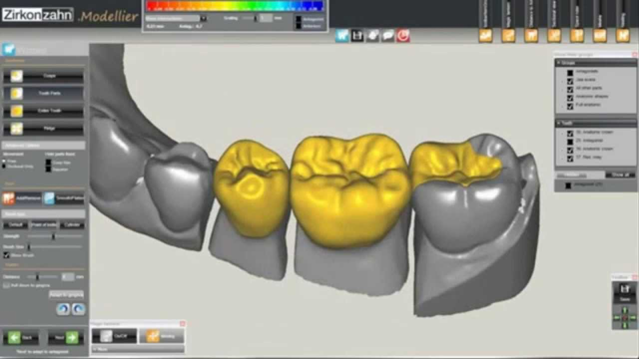 a report on cadcam systems Dental prosthetics and digital dentistry report suite for us | 2016 this is due to its 117% market share within the chairside cad/cam system segment 3shape was third in the combined cad/cam device the us market report suite for dental prosthetics and digital dentistry.