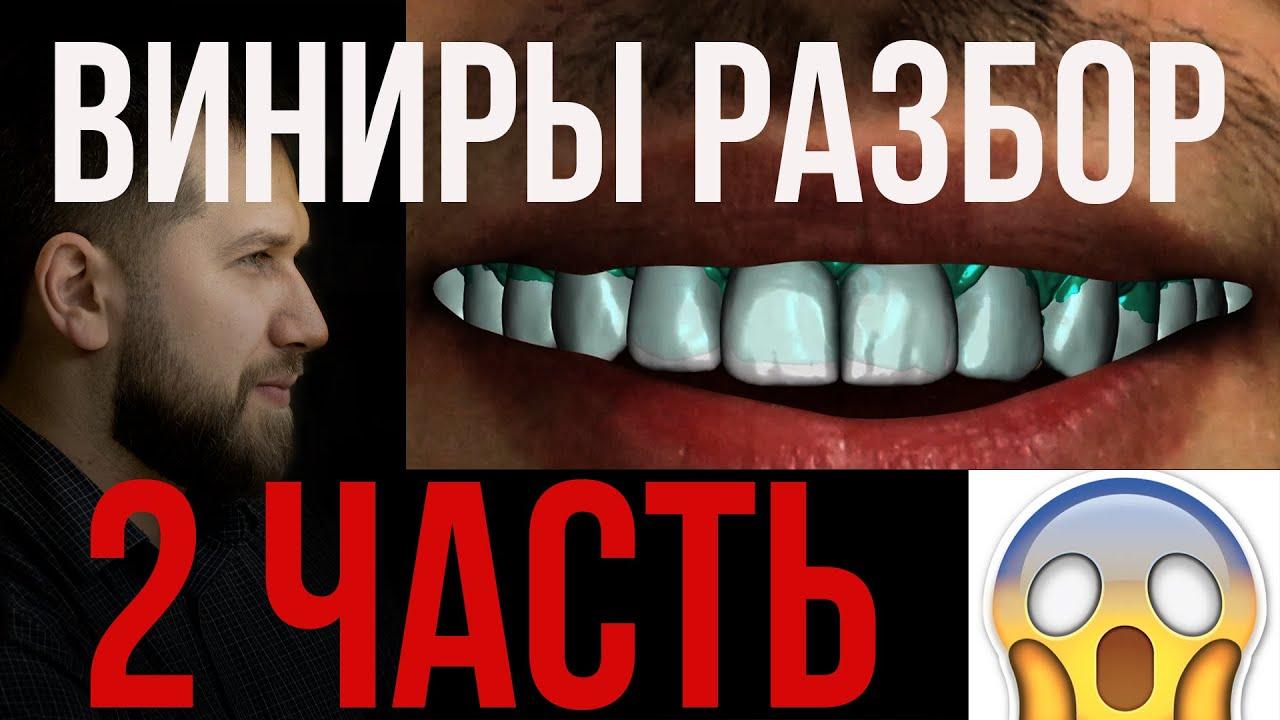 Препарирование виниров. Что с оттиском зубов!?