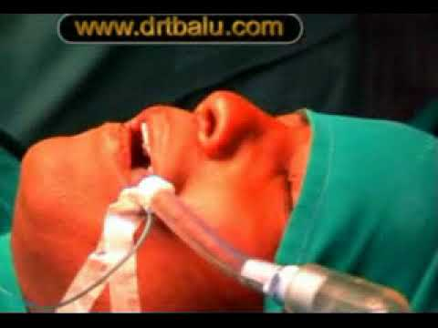 Fracture Nasal Bone Closed Reduction
