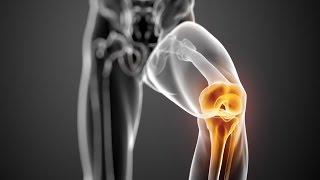 felkar izomfájdalom ízületi fájdalom és gyulladás hogyan kezelhető