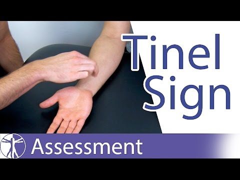 Tinel Sign: Wrist⎟Carpal Tunnel Syndrome