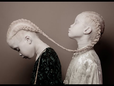 These Twins Sent Shockwaves Through The Fashion World – And Their Jaw Dropping Photos Show Why