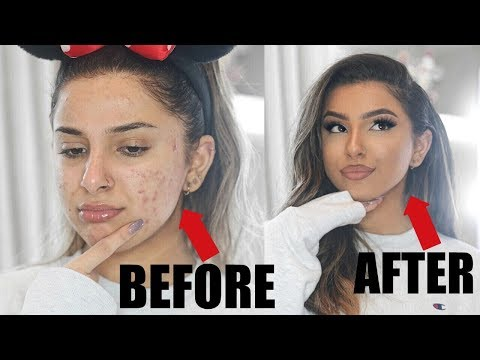 How To FAKE FLAWLESS SKIN!