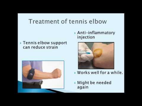 Tennis Elbow Treatment In Hyderabad