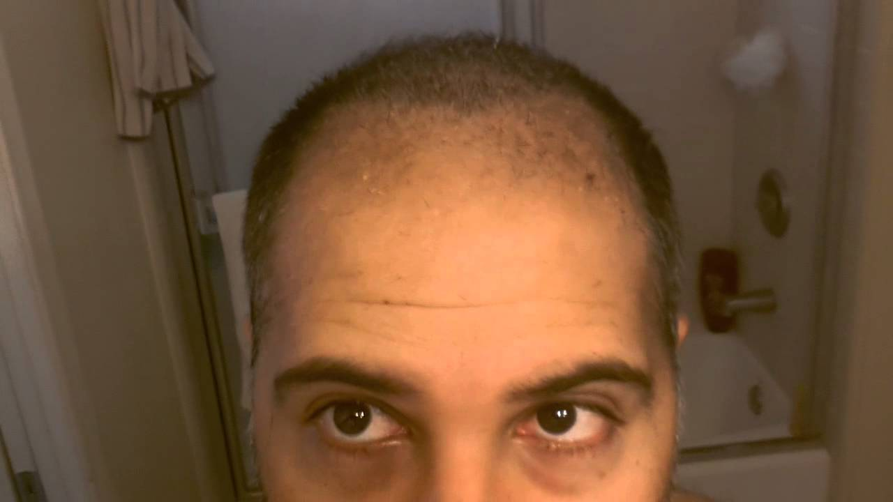 Hair Transplant Review 2013 First Hair Cut Resul Youtube