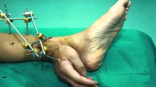 Chinese doctors are planting the hands of the patient in the leg to save him