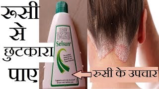 Best Treatment For Dandruff & Hair Fall Use Selsun Anti Dandruff Treatment Shampoo | Home Remedies