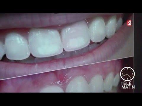 Santé Dents La Chasse Aux Tâches Youtube