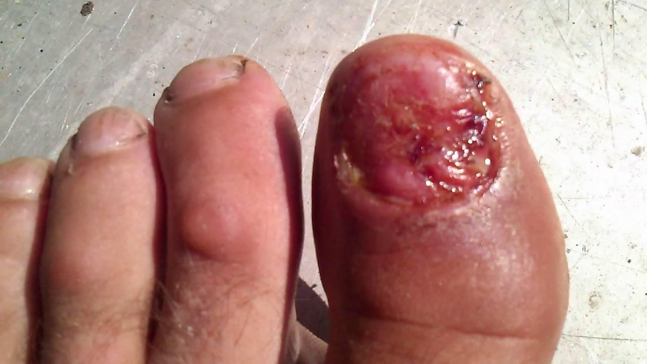 Палец руки без ногтя 2
