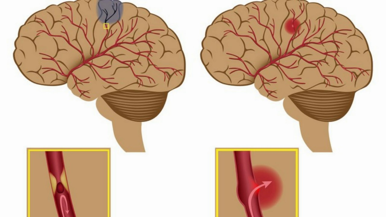 Blood clots and cancer relationship doctor answers on - Difference Between Aneurysm And Blood Clot