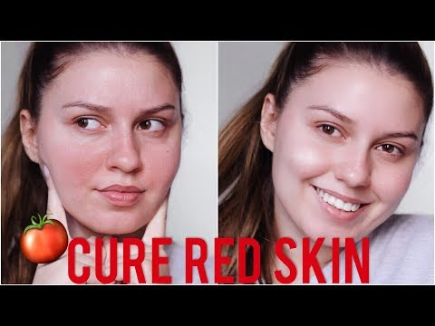 SI I PERMIRESOJ SKUQJET E FYTYRES  + GIVEAWAY UPDATE | How to Cure Red , Irritated Skin | SARA KARAJ