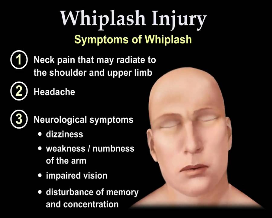 Whiplash Injury Animation Everything You Need to Know