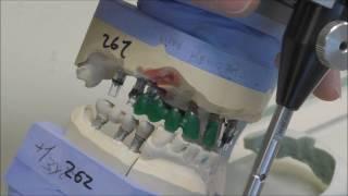 Каркасы на Имплантаты AstraTech винтовая фиксация под пластмассу.