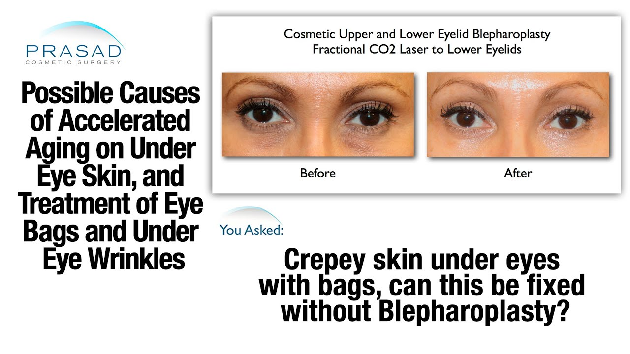 the causes of eye bags and thinned skin the