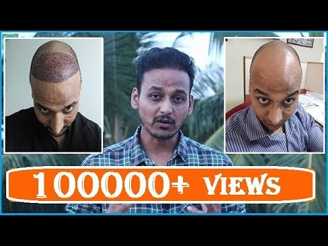 HAIR TRANSPLANT (2018)|| 7.5 MONTHS COMPLETE|| MY HAIR DENSITY FROM CLOSE UP