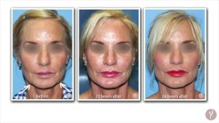 What to Expect After a Y LIFT® | The First 24 Hours After an Instant, Non Surgical Facelift
