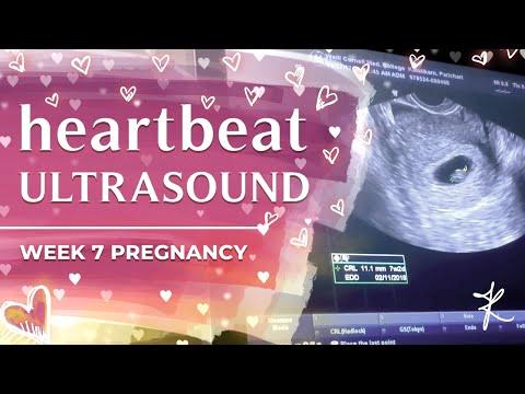 heartbeat-ultrasound-:-week-7-pregnancy