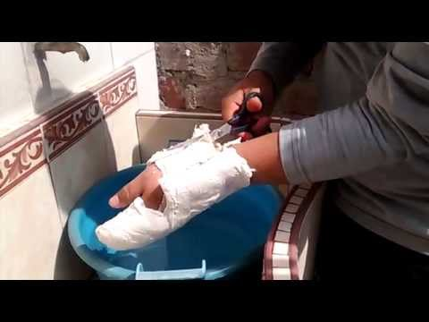 Como sacar yeso del brazo sin ayuda youtube - Como quitar yeso del piso ...