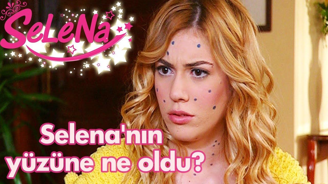 Selena'nın yüzüne ne oldu?