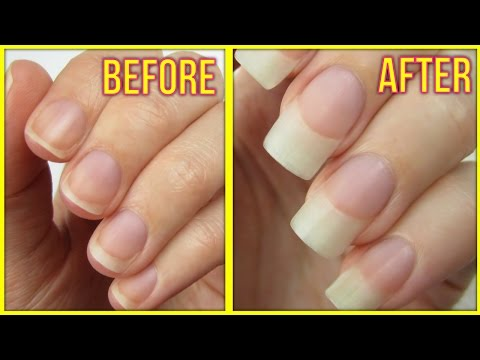 Naturally Grow Your Nails Faster Within A Week | Easy & Effective Home Remedy