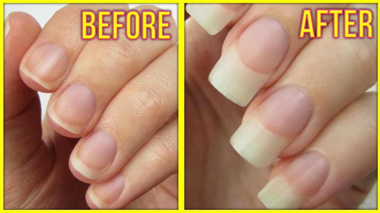Naturally Grow Your Nails Faster Within A Week | Easy & Effective ...