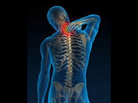 Quiropractico Cusco y los Nervios Pinchados en la Espalda y Cuello ...