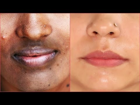 How to Remove Dark Patches/Spots/hyper pigmentation around Your Mouth | Fast & Naturally