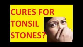 Cures for Tonsil Stones   |||  Tonsil stones how to remove