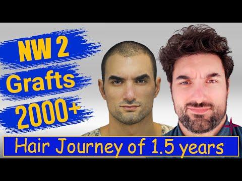 Caucasian Hair Transplantation Result in 1.5 Year,  Grade 2@Eugenix by Drs Sethi & Bansal