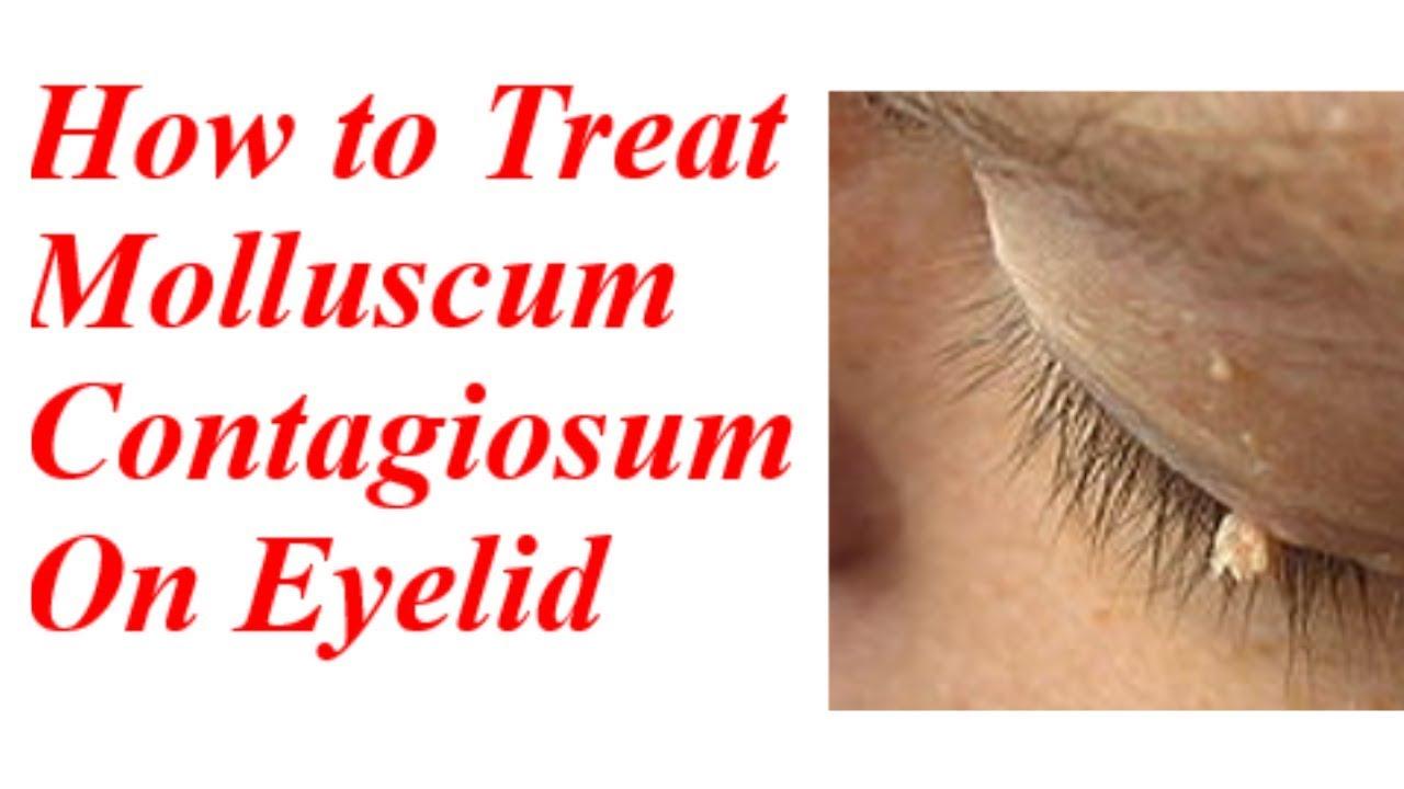 How To Treat Molluscum Contagiosum On Eyelid - Youtube-4323
