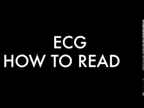 HOW TO READ ECG AT HOME/?? ?? ECG ???? ???? ???