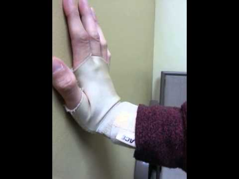 Third metacarpal bone fracture therapy