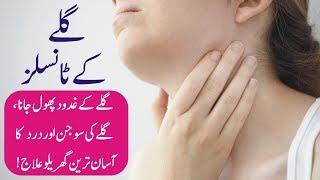 Download Lagu Tonsils ka gharelu ilaj / Tonsillitis treatment in urdu / Galay ke tonsils ka ilaj. mp3