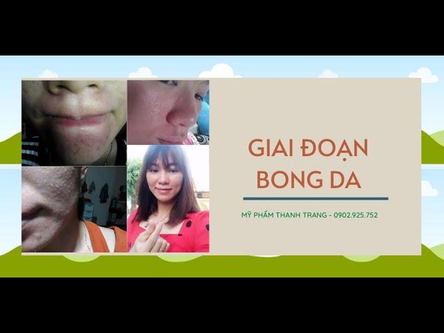 Giai Đoạn Bong Da Của Tái Tạo Da Thanh Trang - Hồng Thúy 0902925752