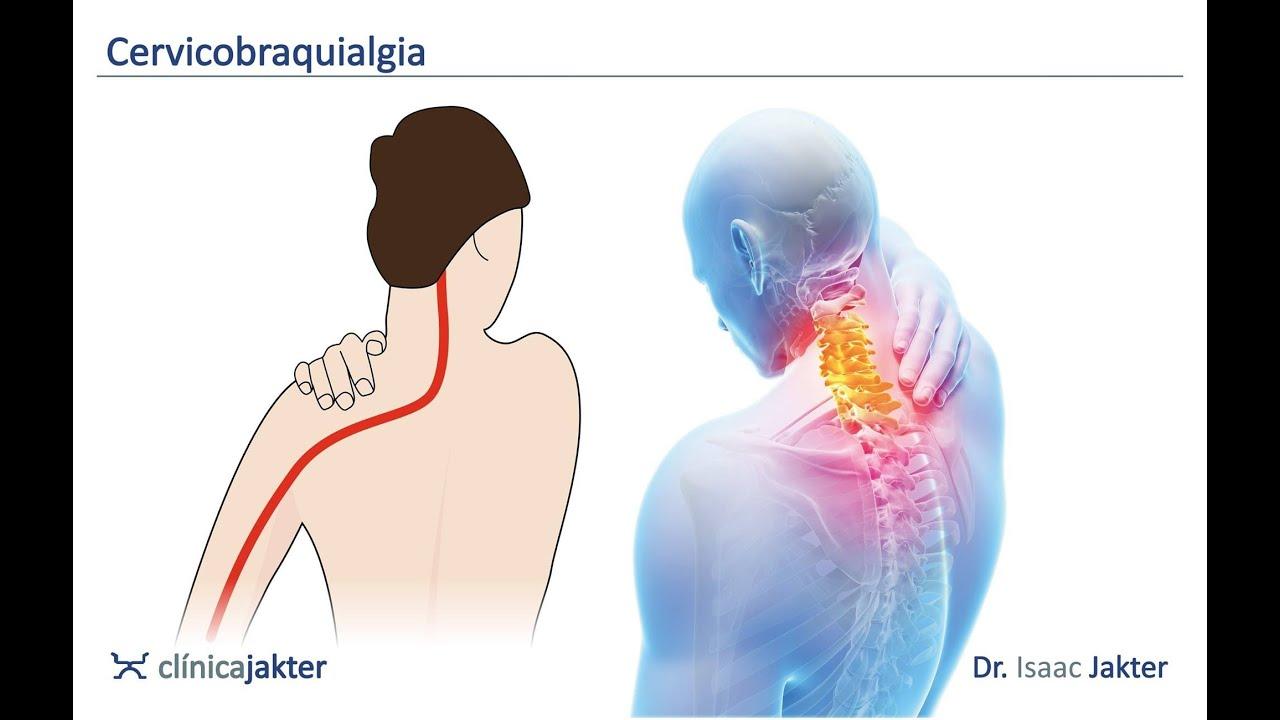 adormecimiento del brazo derecho y dolor de cabeza